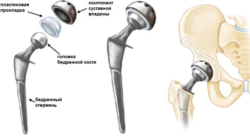 Протезы тазобедреного сустава система норбекова.суставная гимнастика с начинкой